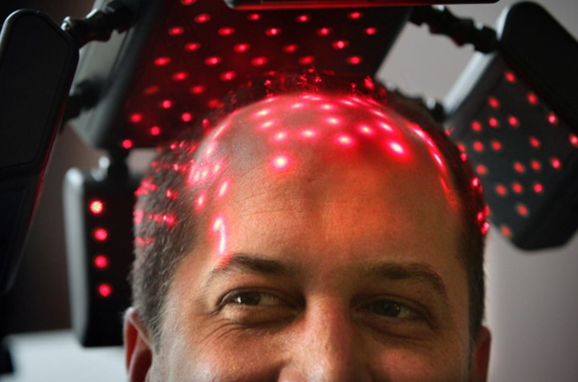 Low Level Light Therapy Technology for Hair Growth